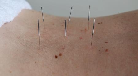 accupunture treatment